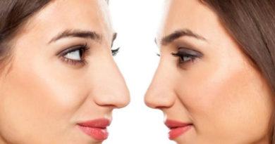 форма на носа