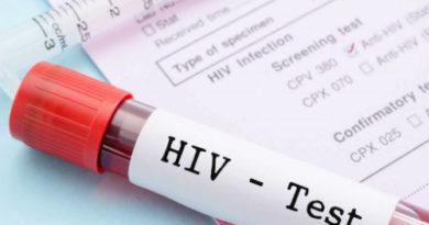 Ваксина срещу ХИВ вируса ще се тества върху хора